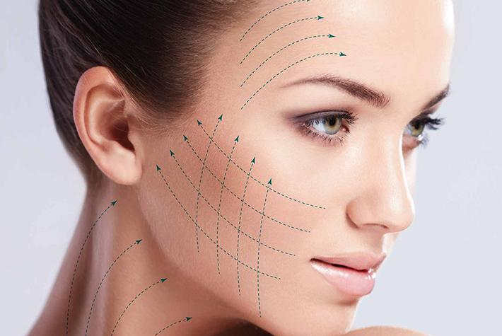fios-absorviveis-lifting-sem-cortes-dermatologia-e-saude(1)