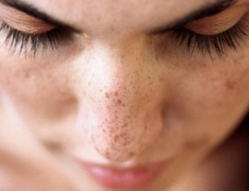 Alguns fatos sobre a hiperpigmentação!