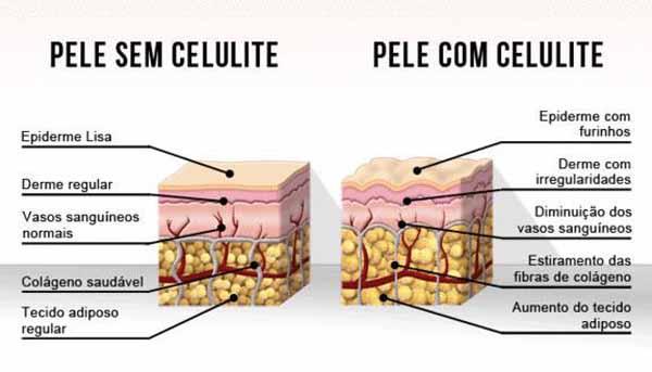 diferenca-pele-com-sem-celulite